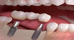 İmplant Diş Uygulaması