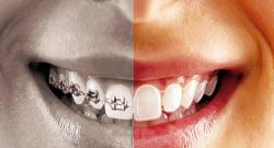 Telsiz Ortodonti Tedavisi